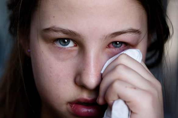 Young girl with conjunctivitis (pink eye)